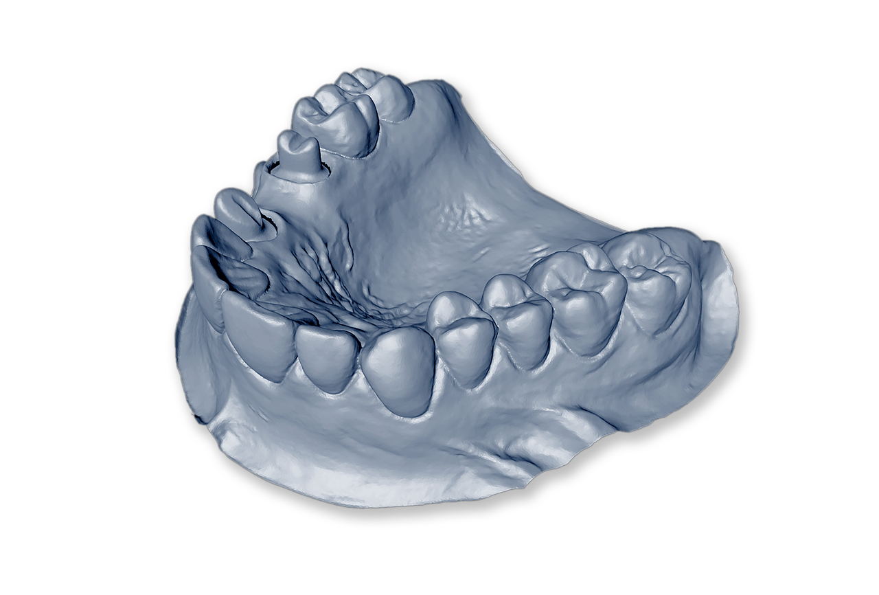 Fatetele dentare ceramice