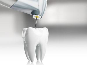 terapia-endodontica