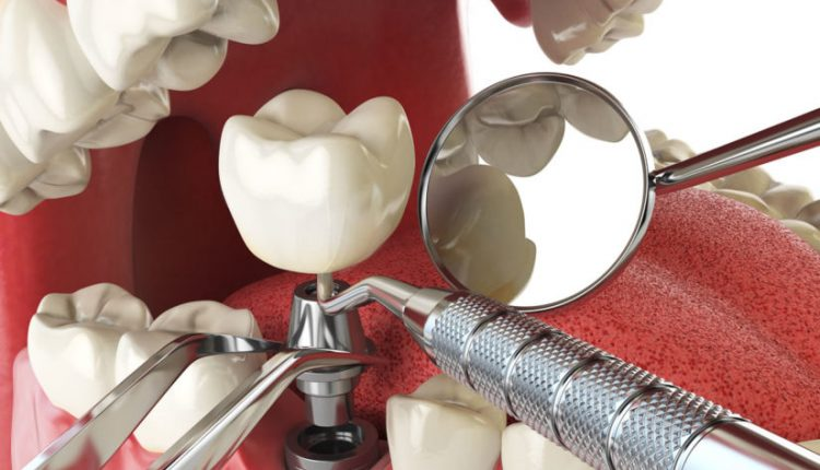 dental-implant-concept-825×619