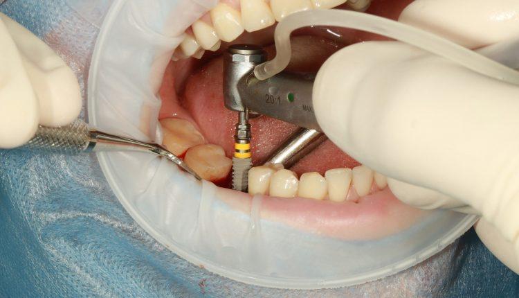 implant-dentar-Bucuresti